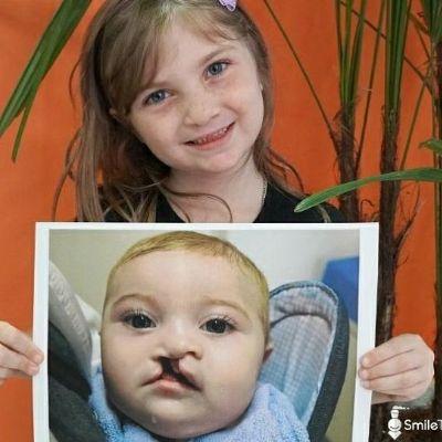Ação solidária irá oferecer tratamento especializado para crianças com fissura de lábios em MT