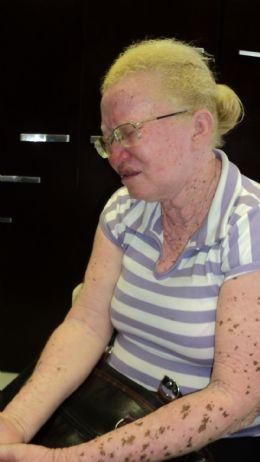 Servidora  albina processa  Prefeitura  de Cuiabá por  sofrer discriminação