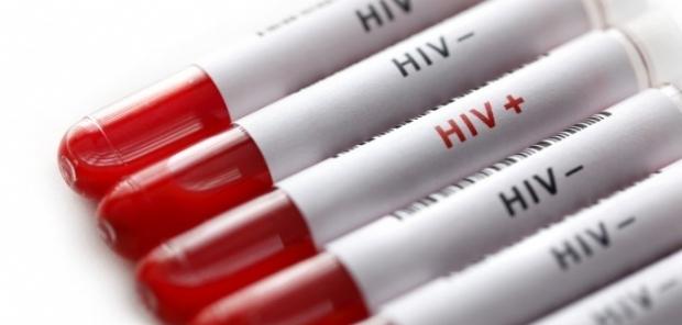 Casos de HIV aumentaram 905% em Mato Grosso, aponta Ministério da Saúde