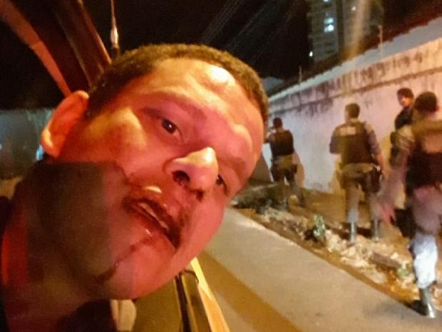 Cabo denuncia agressão por policiais militares em Cuiabá