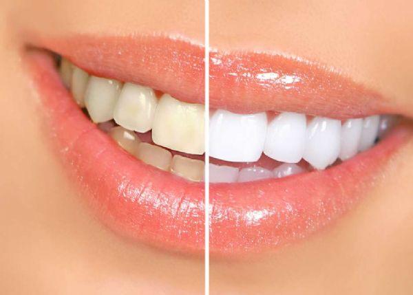 Clareamento: depois dele, seu dente nunca mais será o mesmo
