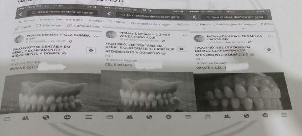 Falso dentista que oferecia próteses pelas redes sociais é indiciado pela Decon