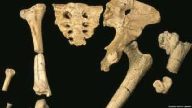 Dor no quadril e nos joelhos pode ser 'ressaca da evolução', indica estudo