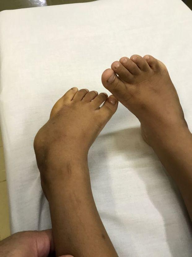 Após dois anos Hospital Geral volta a atender pacientes com o 'Pé Torto' e demais deformidades congênitas