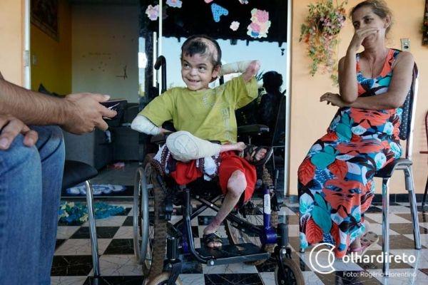Morre Serginho, garoto que travou guerra contra doença rara e tocou coração de cuiabanos
