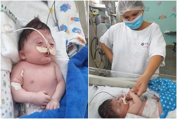 Mãe faz apelo para conseguir cirurgia para o filho com má-formação no crânio e no coração