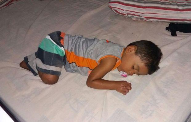 Mãe de bebê de 2 anos que teve pernas e dedos amputados pede ajuda para próteses;  fotos e vídeo