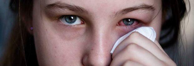 Conjuntivite tratada de maneira inadequada pode causar comprometimento visual, alerta médico
