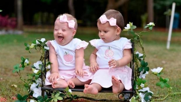 Fisioterapeuta de Mato Grosso tem gêmeas e uma delas nasce com Síndrome de Down