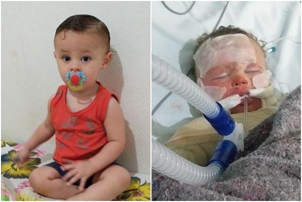 Na UTI com 80% do corpo queimado, criança de um ano precisa de doações