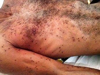 Homem morre em Mato Grosso depois de ser picado por mais de 3 mil abelhas