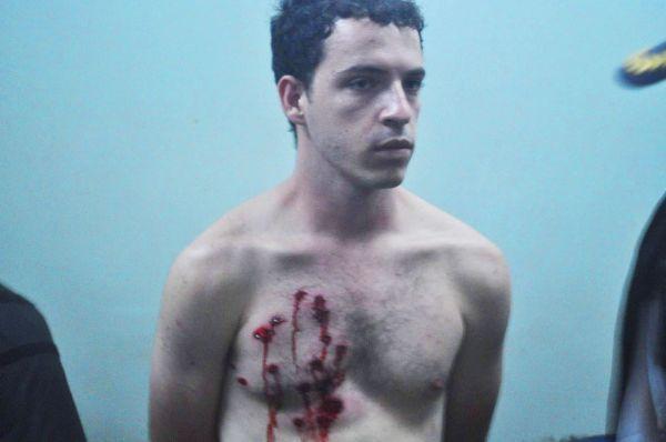 Justiça manda Estado indenizar em R$ 10 mil suplente de deputado ferido pela PM em manifestação